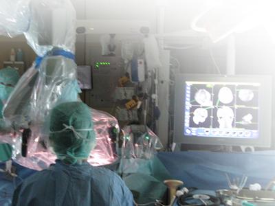 meningioma-sao-paulo-cirurgia-moderna-especialista